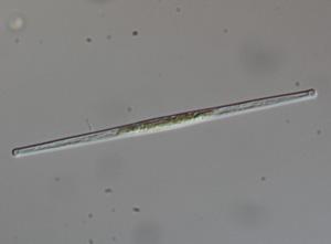 fragilaria diatom